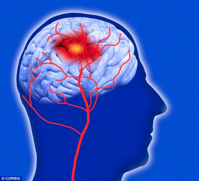 The brainchild of scientists at Cornell University in the US, it uses plates coated with enzymes to detect chemicals that rise in the blood after a stroke (pictured